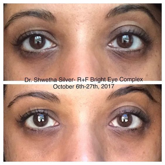 b7d24254210944e9a6a0dd05ce5f47ff - How To Get Rid Of Tired Looking Eyes Naturally