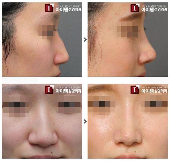 Znalezione obrazy dla zapytania korean nose surgery