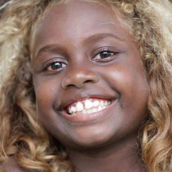 Island of black people with blonde hair opinion