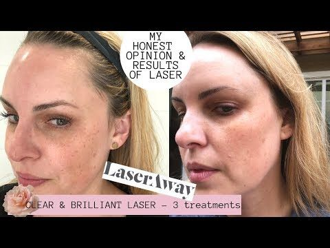 Laseraway Clear Brilliant Laser Results Honest Review Pores Dark Spots Lines Youtube Laseraway How To Treat Acne Toner For Face