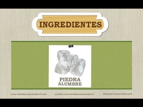 Remedio casero natural para los sabañones, Natural chilblain remedy