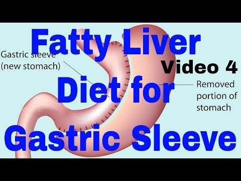 Pin On Gastric Sleeve