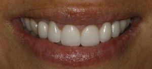 Estética dental, clinica Navarro.
