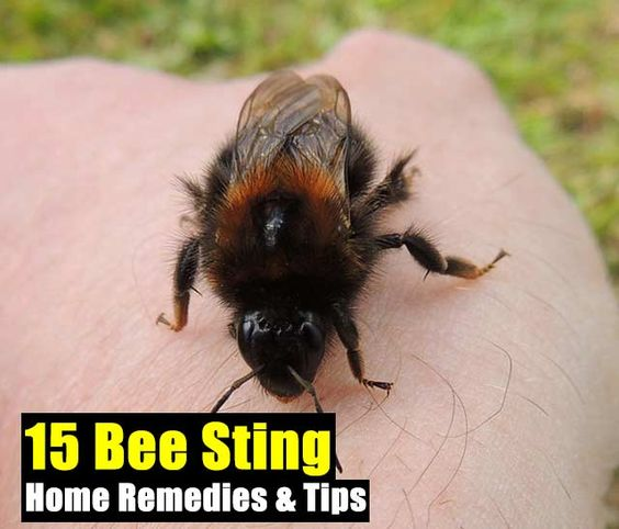 15 Bee Sting Home Remedies & Tips - Getting stung by a bee ...
