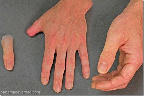 Increíbles prótesis hiperrealistas fabricadas como una obra de arte - http://panamadeverdad.com/2014/07/17/increibles-protesis-hiperrealistas-fabricadas-como-una-obra-de-arte/