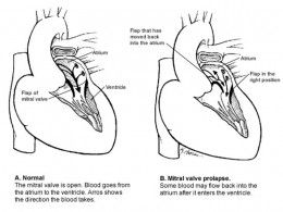 Normal and heart with mitral valve prolapse