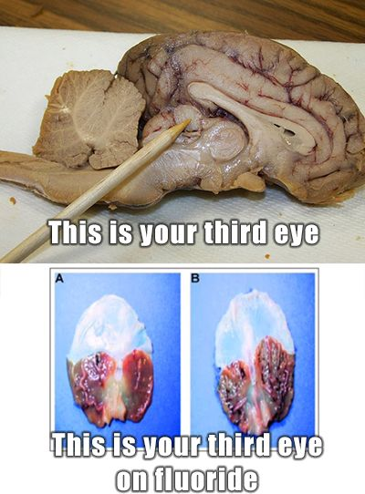 Pineal gland, Spring and Third eye on Pinterest