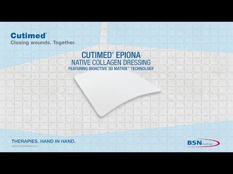 BSN Cutimed® Epiona Animation - YouTube