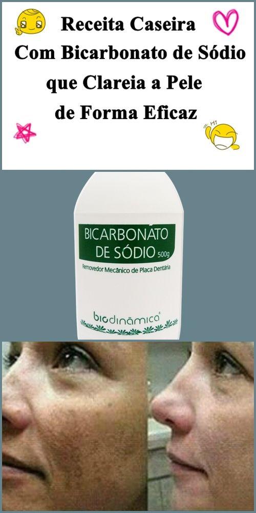 Bicarbonatodesodioparaclarearapele