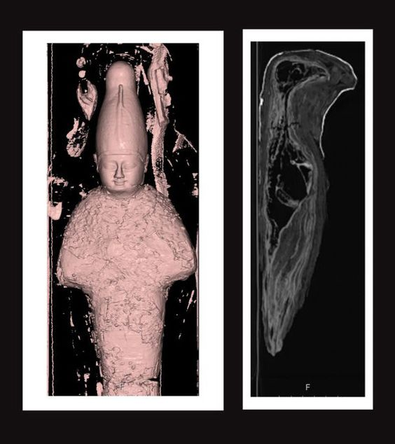 CT-scans onthullen inhoud van kleine oude Egyptische mummies
