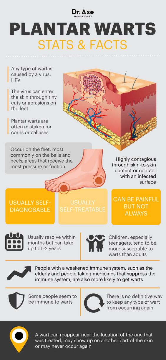 Plantar warts facts - Dr. Axe http://www.draxe.com #health #holistic #natural