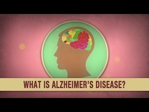 an overview of the progressive disease alzheimers disease Alzheimer's disease essays - overview of alzheimer's disease  the result is progressive memory loss and mental breakdown  alzheimers disease essay.