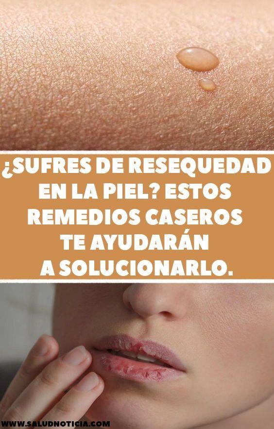 remedios caseros para la resequedad de la piel de la cara