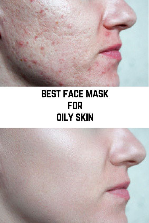 Best Face Masks For Oily Skin Mask For Oily Skin Oily Skin Treating Oily Skin