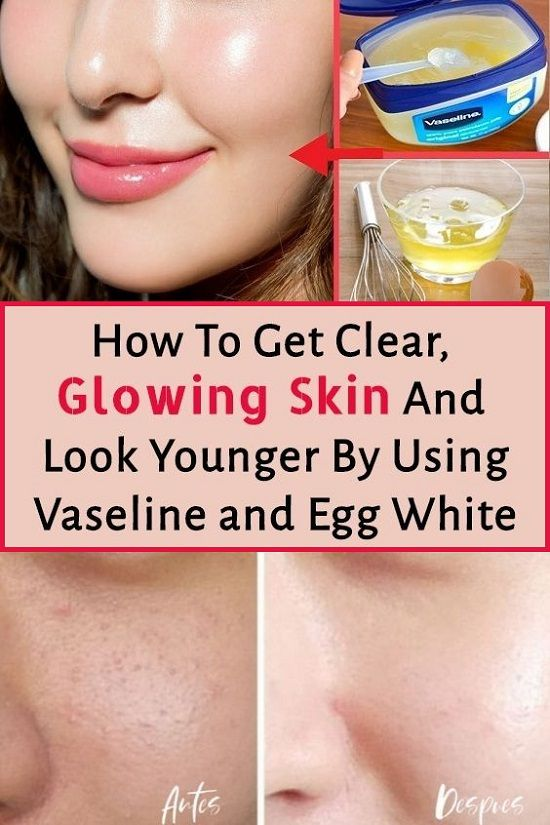 b99dae8ec45c76525705e2c2043cf96a - How To Get Clear And Glowing Face At Home