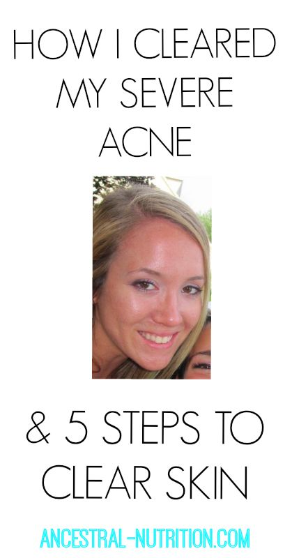 Five Steps To Clear Acne!