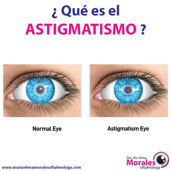 ¿¿ Qué es el astigmatismo ??  El astigmatismo es una imperfección en la curvatura de la córnea (la cúpula transparente que cubre el iris y la pupila del ojo), o en la estructura del lente (cristalino) del ojo. Normalmente, la córnea y el cristalino son suaves y curvos por igual en todas direcciones, lo que ayuda a enfocar los rayos de luz pronunciada y correctamente hacia la retina, en la parte posterior del ojo.