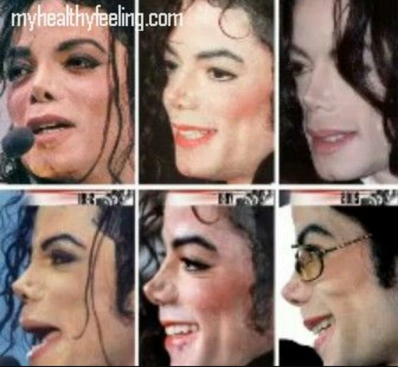 """To all the poeple who think that he """"overdid"""" his plastic surgeries, take a look at this one. It was only his skin colour that grew paler as time passed.. Nothing more."""