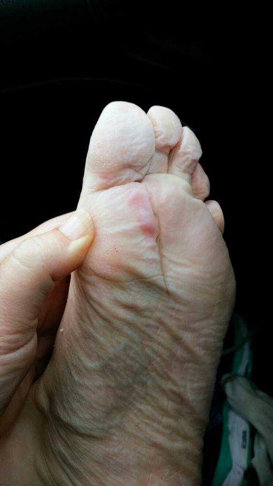 Feet: