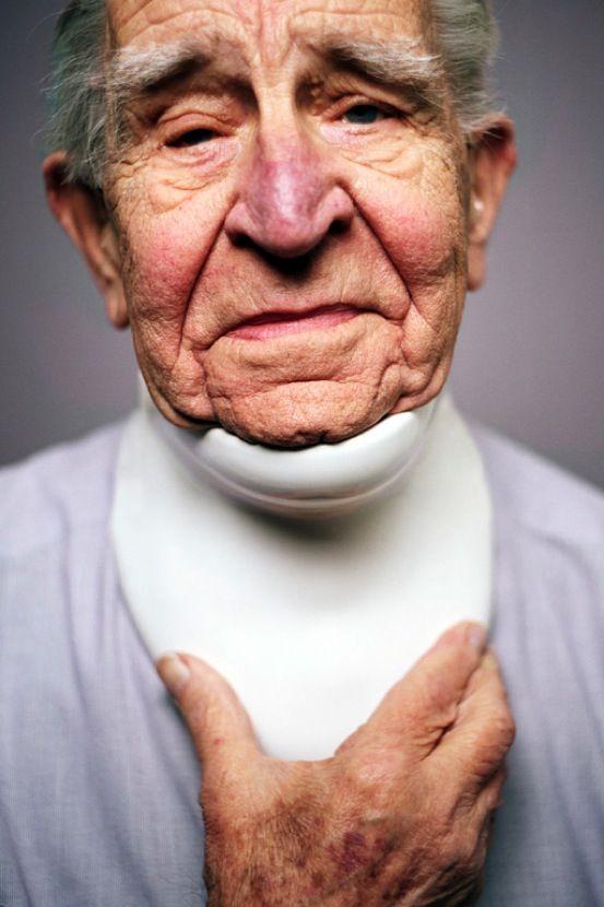 Proaesthetics. Porcelaine.Damian O'Sullivan. Explore la fragilité, l'utilité, dans la méthaphore de la vieillesse, du corps blessé, en lien avec la porcelaine. http://www.damianosullivan.com/page1/page13/page19/ Photo: Adriaan van der Ploeg 5/04/14: