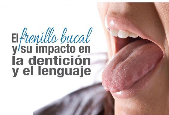 El Frenillo Bucal y su impacto en la dentición y el lenguaje