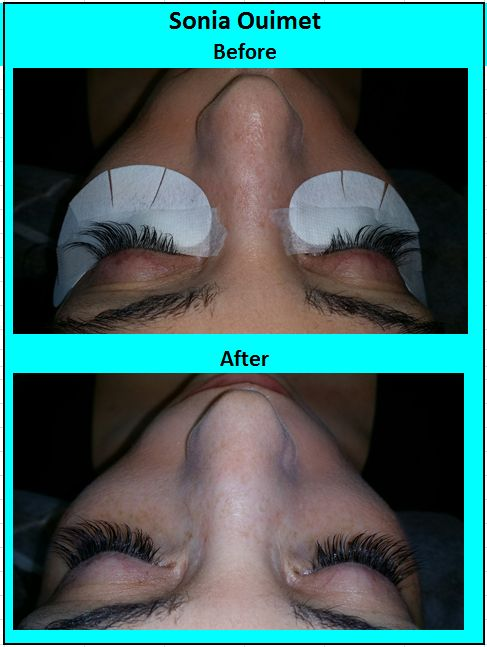 Eyelashsonia0 Xtremelashes Eyelashextensionsonia0