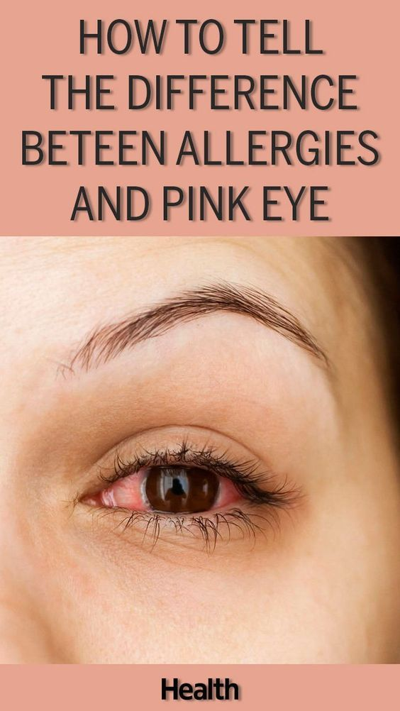 How to Tell the Difference Between Allergies and Pink Eye | Pink eyes,  Treating pink eye, Itchy eyes remedy allergies