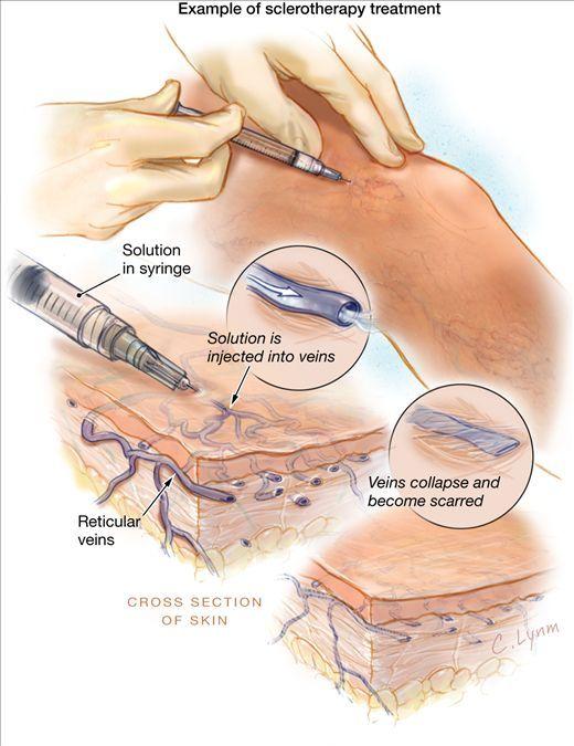 Dr. Marius Fodor | Chirurgie generală şi chirurgie vasculară
