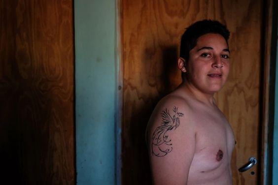 En su transición a varón trans, Gian prestó su consentimiento para hacerse la mastectomía, es decir, la cirugía mediante la cual se quitó las pequeñas mamas que tenía (Joaquín Camiletti)