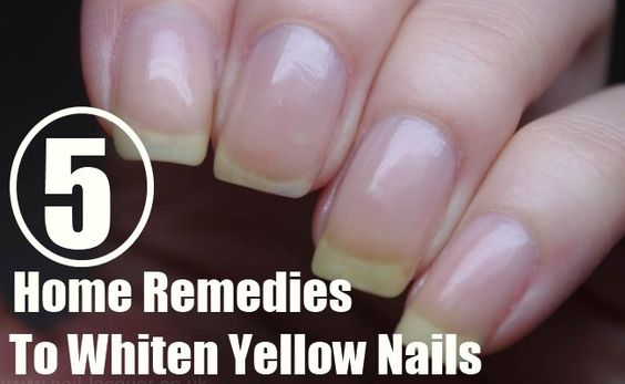 5 Home Remedies To Whiten Yellow Nails