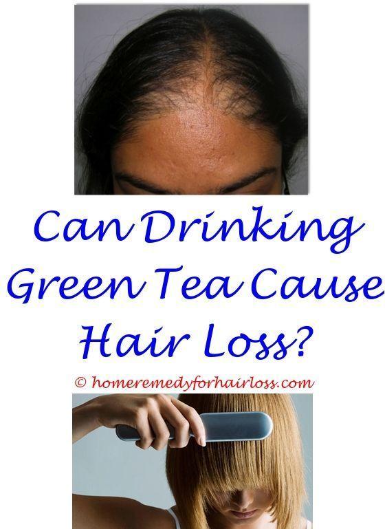 Folfox Chemo Hair Loss Can Hair Loss Due To Dandruff Home