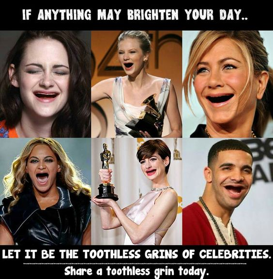 26 Toothless Celebrity Photos Show Us Why Famous ... - 9GAG