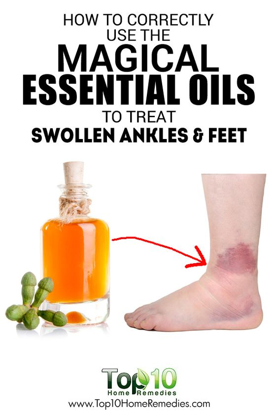 How to Use Essential Oils to Treat Swollen Ankles and Feet