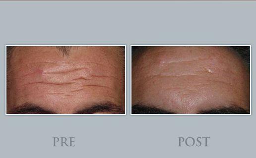 PRE/POST tratamientos arrugas de expresión tercio superior de la cara