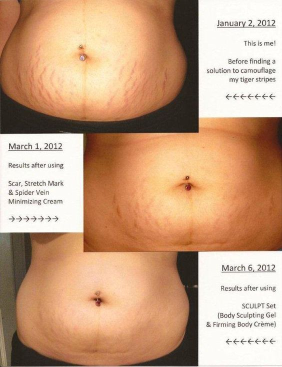 BC Scar, Stretch Mark, and Spider Vein cream before and after!