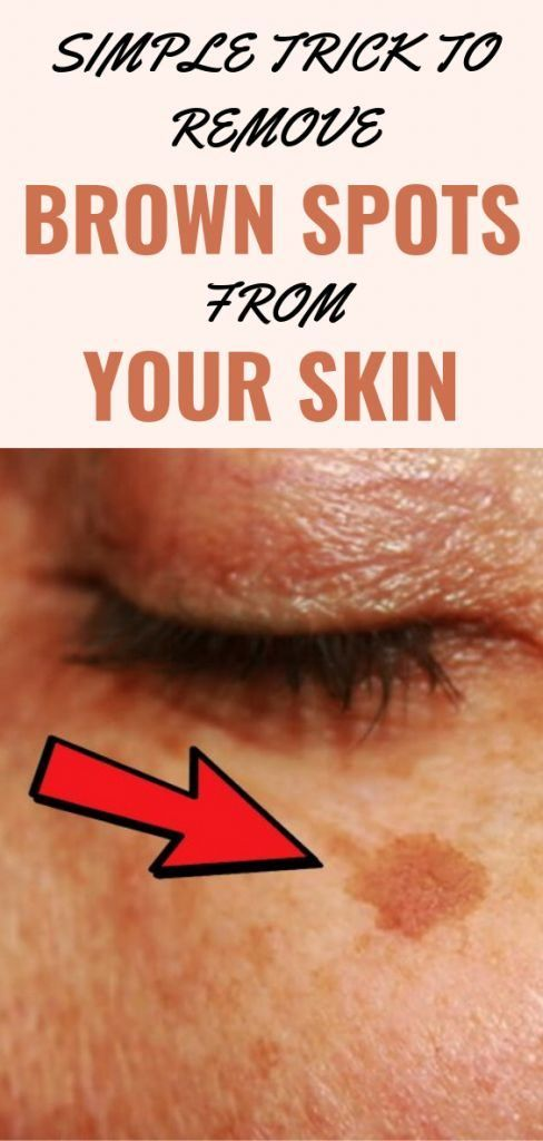 Simple Trick To Remove Brown Spots From Your Skin Spots On Face Brown Spots On Skin Brown Spots