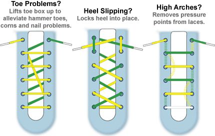 Types of lacing techniques for shoes depending on your specific foot needs