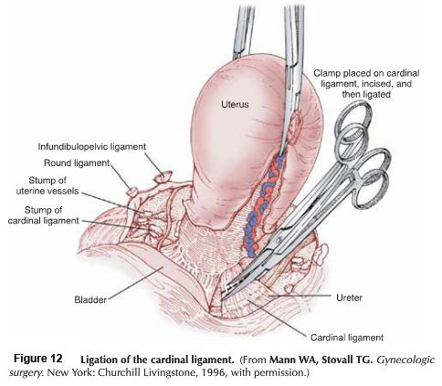 Uterus Anatomy Ligaments cardinal ligament uter...