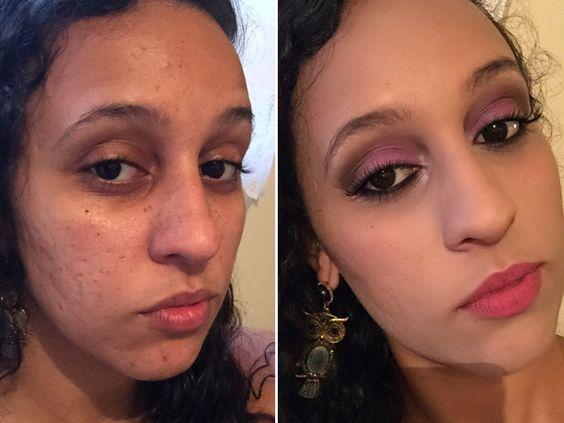 Minha querida amiga Karen me cedeu a beleza dela para que eu pudesse mostrar para vocês o antes e o depois de uma pele com acne maquiada corretamente  Corre lá no Blog que eu te conto tudo: www.falamiga.com.br