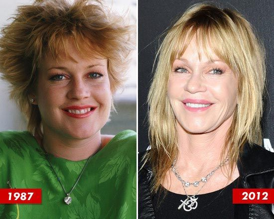 Melanie Griffith Plastic Surgery Before & After