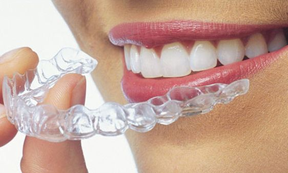 I have booked my appointment for Invisible Braces at Sabka dentist!