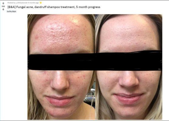 Fungal Acne What Is It Have You Got It How To Get Rid In 2020 Back Acne Treatment Diy Acne Treatment Acne Treatment