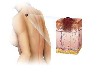 Le carcinome épidermoïde (#spinocellulaire) est le cancer cutané le plus répandu après les carcinomes basocellulaires, mais représente un danger plus important. Il peut métastaser dans les ganglions ou sur des organes à distance. Il se développe en général sur des lésions cutanées préexistantes.