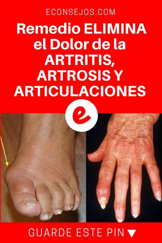 artritis y artrosis sintomas