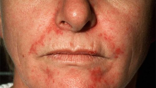 varicoză și eczemă foto)