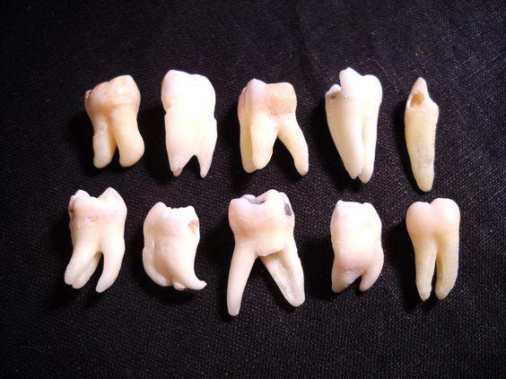 Real human teeth - photo#12