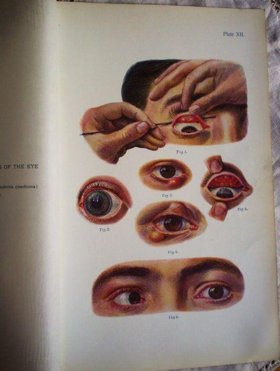 Diagramme de le œil, chromolithographie illustration médicale ...