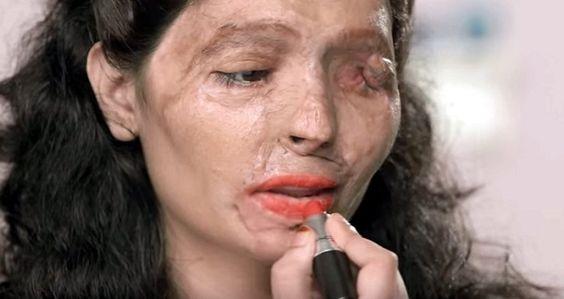 Impactante campaña de mujer desfigurada con ácido para detener estos ataques