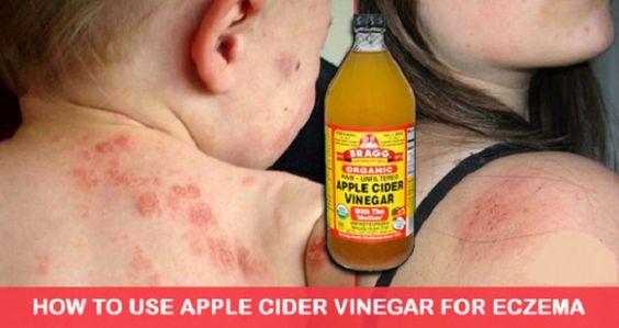Here's How To Use Apple Cider Vinegar To Treat Eczema, It's Unbelievably Effective - Newz Magazine