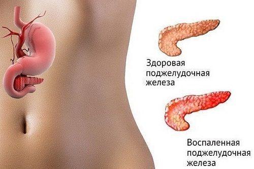 7 рецептов лечения поджелудочной железы Нарушение работы внутренних органов человека негативно сказывается на состоянии его здоровья. Когда появляются проблемы с пищеварением, уровень сахара в крови повышается, то такие симптомы говорят о неполадках в работе поджелудочной железы...